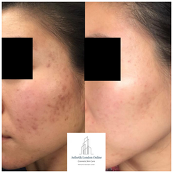 Acne Scarring & Pigmentation