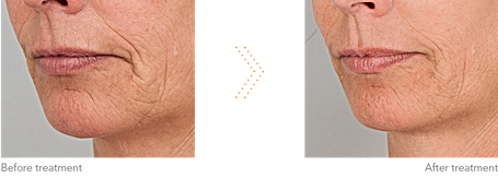 Marionette lines and Nasolabial Folds Asthetik Londn