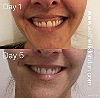 Gummy Smile Treatment Asthetik Londn