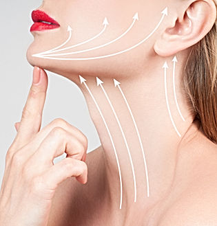 Non Surgical Neck Lift Asthetik London