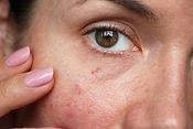 capillaries on the skin of the face.jpg