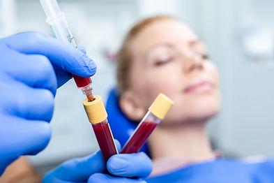 Platelet rich plasma ( PRP) therapy proc