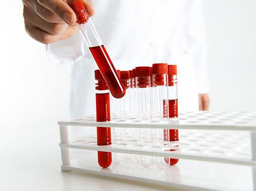Serology Blood Test