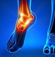Hattersley osteopathy pain ankle.jpg
