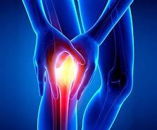 osteopathy pain knee.jpg