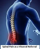Spinal pain link.jpg