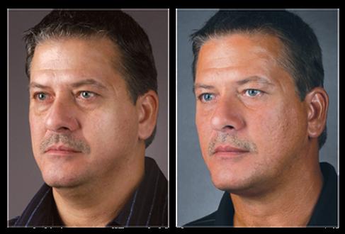 Men Facial Exercise