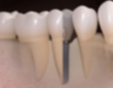Dental Implant Oakland Berkeley