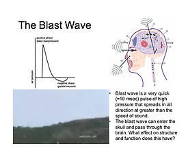 Blast wave-blast exposure-Dr. Perl-TBI-S