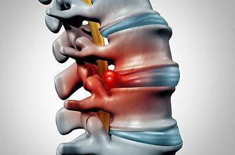 DISC HERNIATIONS - Optimum Chiropractic & Fitness