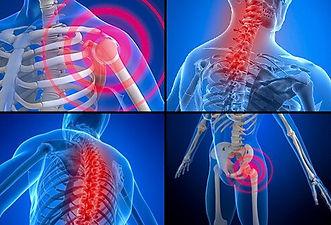 FIBROMYALGIA - Optimum Chiropractic & Fitness