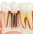Implant example.jpg