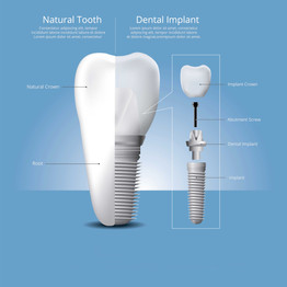 Why should dental implants be preferred?