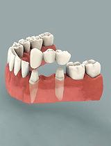 Dental-Bridges.jpg