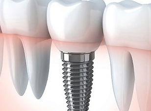Dental Implant in Antalya, Turkey