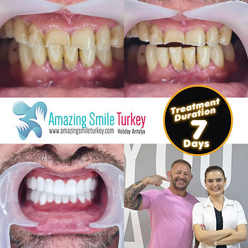 Zirconium Veneers Turkey | Amazing Smile Dental | Antalya