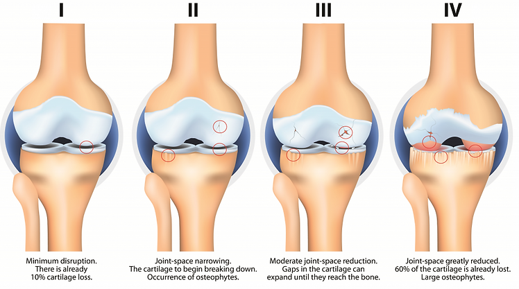 knee OA stage.png