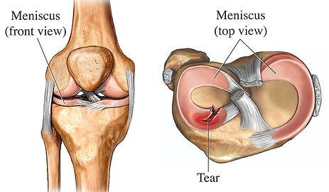 meniscus.jpg