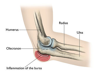 elbow pain 2.jpg