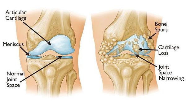 knee OA anantomy.jpg