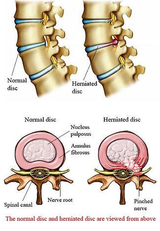 herniated-disc1.jpg