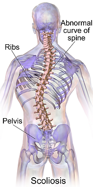 Scoliosis.png