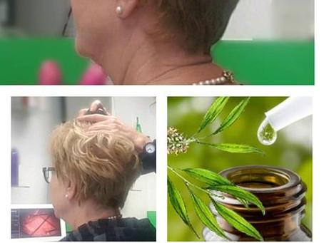 Parrucchieri Conegliano:Come intervenire su un caso di forfora ostinata