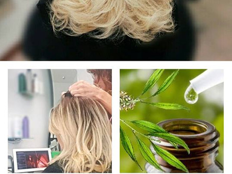 Parrucchieri Conegliano:come intervenire in caso di prurito e forfora.