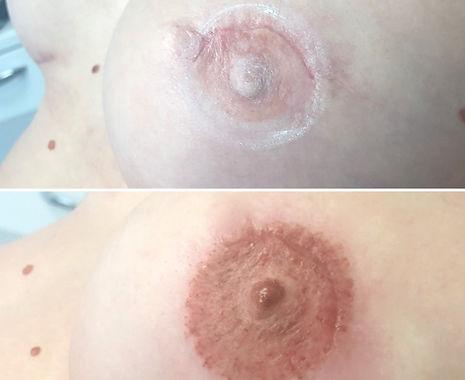 Dermopigmentation_aréole_mammaire.JPG