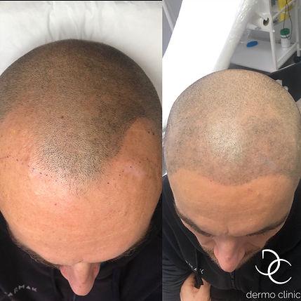 Tricopigmentation Dermo Clinic