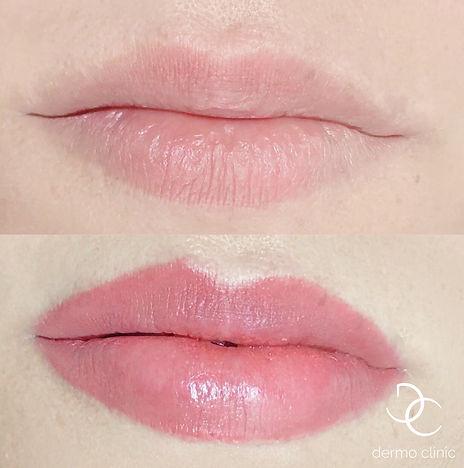 Maquillage permanent effet rouge à lèvres Dermo Clinic