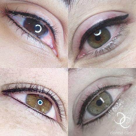 Eye Liner Dermo Clinic