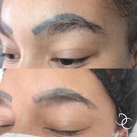 Détataouage des sourcils après un maquillage permanent