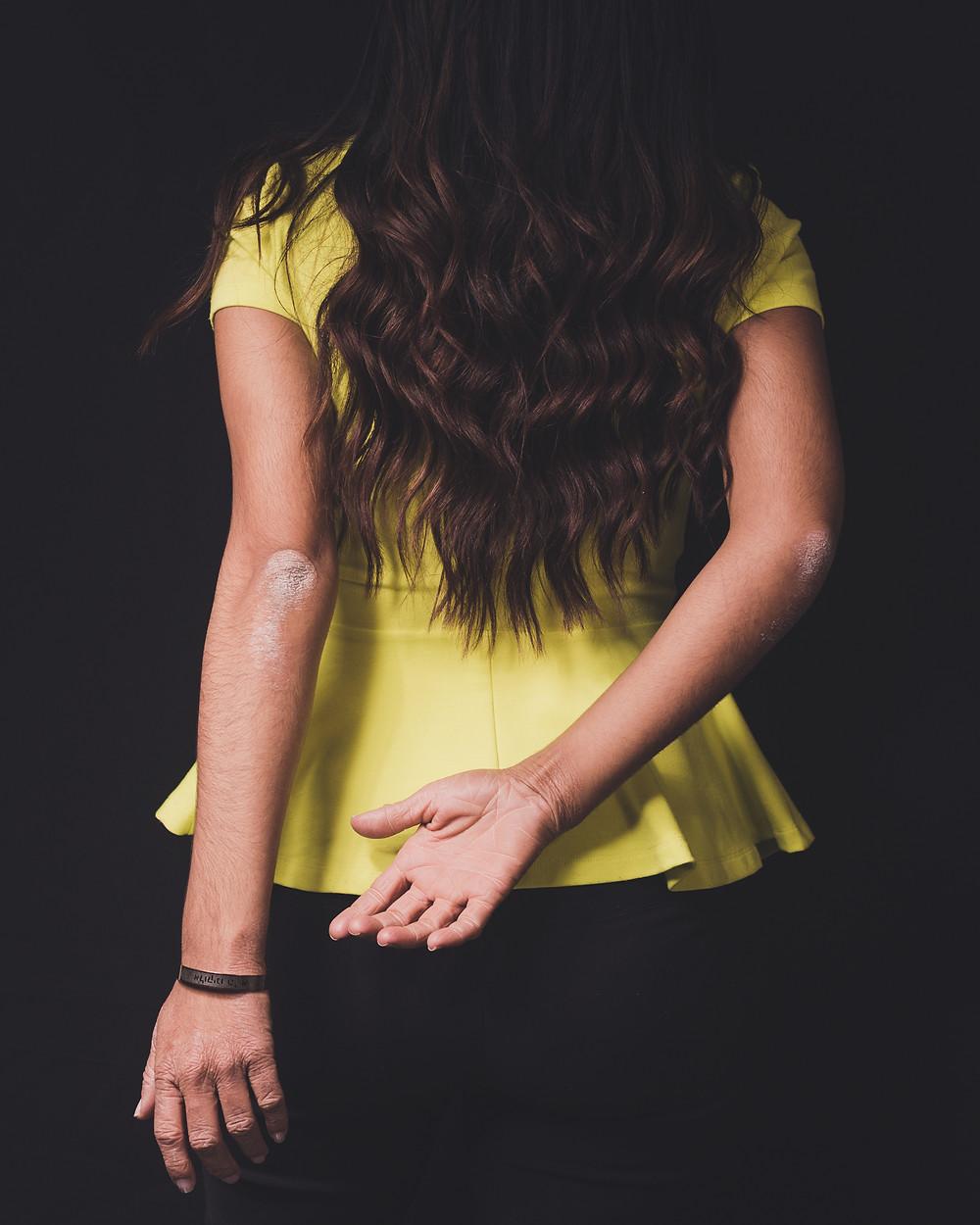 La librta de Lola- Lesiones manos y codos