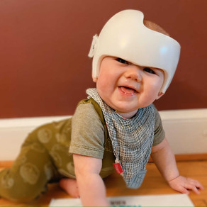 Does Your Baby Need A Helmet? Here Are Some Things From Our Process To Make Yours Easier.