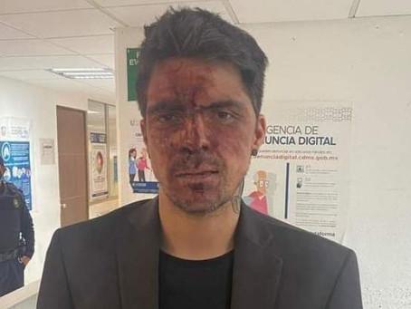 César D'Alessio acusa haber sido golpeado por Arturo Montiel