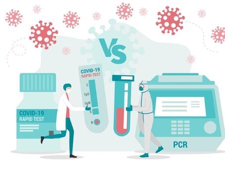 Prueba PCR y Antígenos: Conoce sus diferencias y similitudes