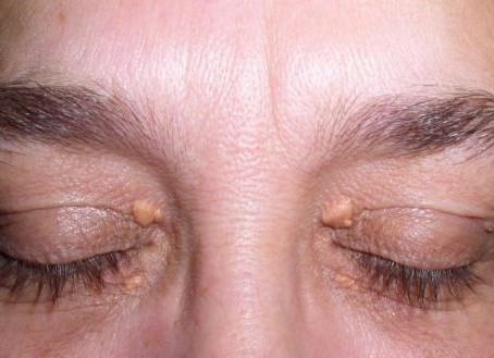 """¿Tienes """"bultos"""" alrededor de los ojos? Qué significan y cómo tratarlos"""