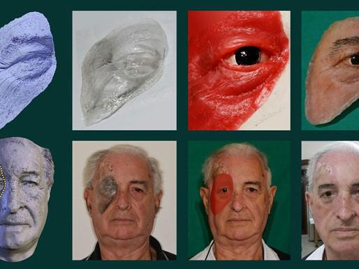 Paciente recebe implante facial desenvolvido por centro vinculado ao governo