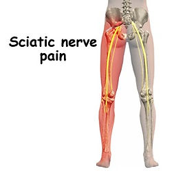 How long does sciatica pain last