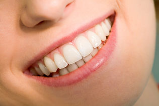 Beautiful Smiles Dentistry Roseville CA Healthy Smile