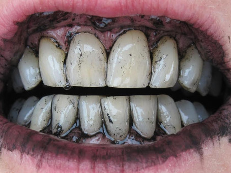 Is Activated Charcoal Safe To Use For Tooth Whitening?