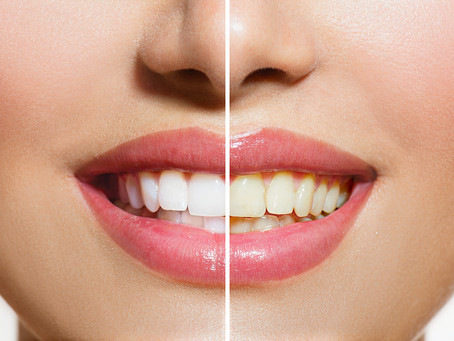 What Types Of Teeth Whitening Procedures Are There?