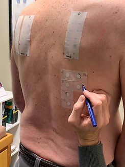 Allergy Testing, The Allergy Station Roseville, CA