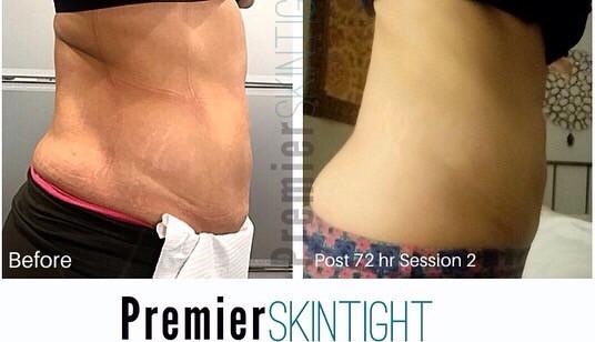 PremierFibroblast,Premier Skintight.png.
