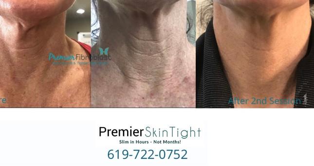Premier Skintight-Premier Fibroblast.jpg