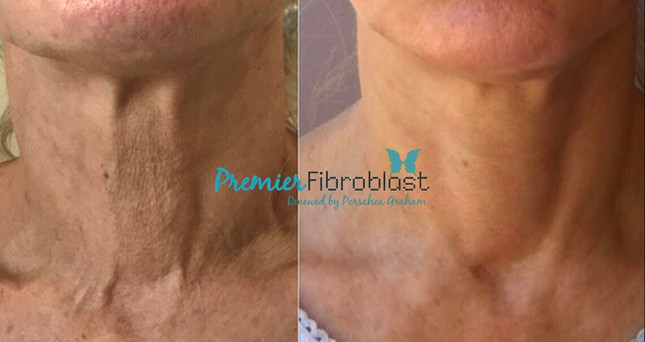 Premier Fibroblast Signature treatment