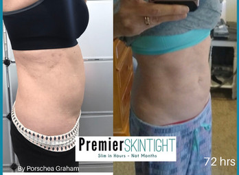 premier skintight-premier fibroblast