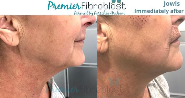 PF Ultratightening - Premier Fibroblast