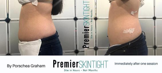 PremierFibroblast,Premier Skintight.png